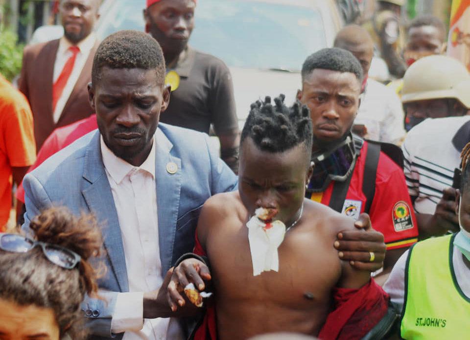 Producer Dan Magic, ASP Kato Brutally Injured in Bobi Wine, Police Fracas -  Uganda Mirror